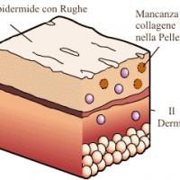 La crema al collagene aiuta ad eliminare le cicatrici