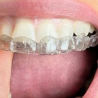 La rivoluzione dell'ortodonzia mobile con Invisalign: ottenere un sorriso perfetto con tutto il comfort durante il trattamento.