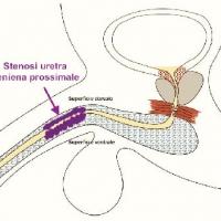 Errore Medico: Un Uretra Distrutta (seconda parte)