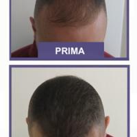 Tricopigmentazione o trapianto capelli: scegli la sicurezza e la praticità.