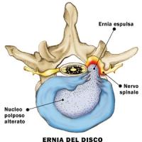 AIC Ernia Disco: l'aiuto della Chiropratica, Intervento del Dr.Wayne Steiner