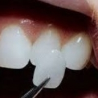 Le faccette dentali per ritrovare la bellezza del tuo sorriso a Parma