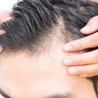 Avere i capelli in poche ore? La tricopigmentazione