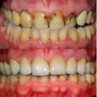 La visita dal dentista: a Torino i 10 motivi che ti faranno chiamare il tuo dentista subito
