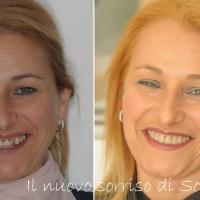 Faccette dentali: a Roma un sorriso bello e sano in tempo record
