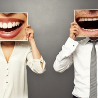 Segui i consigli di Easyfarma per avere denti Bianchi