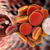 Correlazione Cancro TEV Daiichi Sankyo Italia presenta la ricerca MediPragma