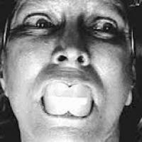 Terapia o tortura ? La verità sull'elettroshock