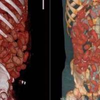 Corriere della droga muore per la rottura di un ovulo di cocaina nello stomaco