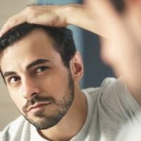 La perdita dei capelli: come si manifesta?