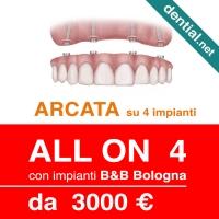 Clinica dentale a Durazzo, Dential il centro dentistico di riferimento per gli italiani all'estero