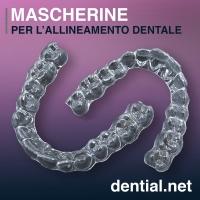 Mascherine dentali invisibili per l'allineamento dei denti storti