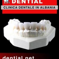 Corone dentali in Albania e capsule per i denti in porcellana a Durazzo