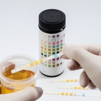 Un test delle urine può essere un sistema di allarme precoce per un grave decorso dell'infezione da COVID?
