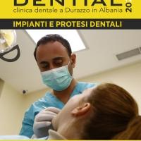 Denti in ceramica e porcellana, Dential il tuo Dentista in Albania