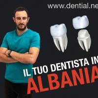 Dentista all'estero, come scegliere una clinica dentale in Croazia o in Albania