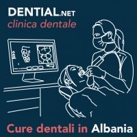 Prezzi dentista in albania